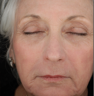 Anti Aging Treatment Andover Electrology Laser Center